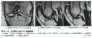 150901-MRI